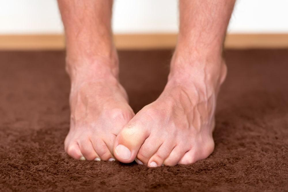 Micosis en los pies 13-13