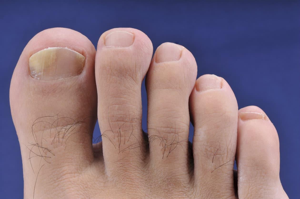 Micosis en los pies 14-14