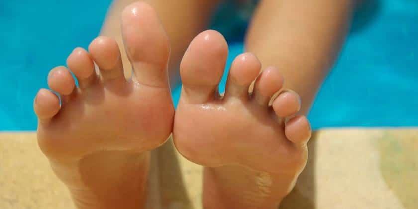 Micosis en los pies 4-4