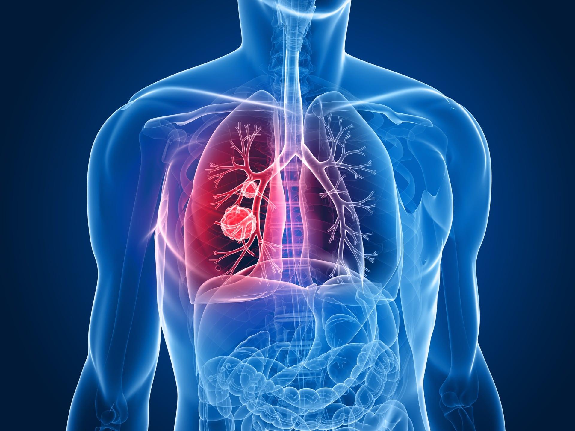 Micosis pulmonar 17-17
