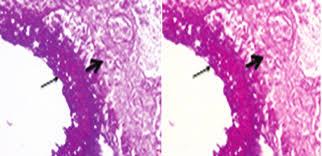 Micosis pulmonar 8-8
