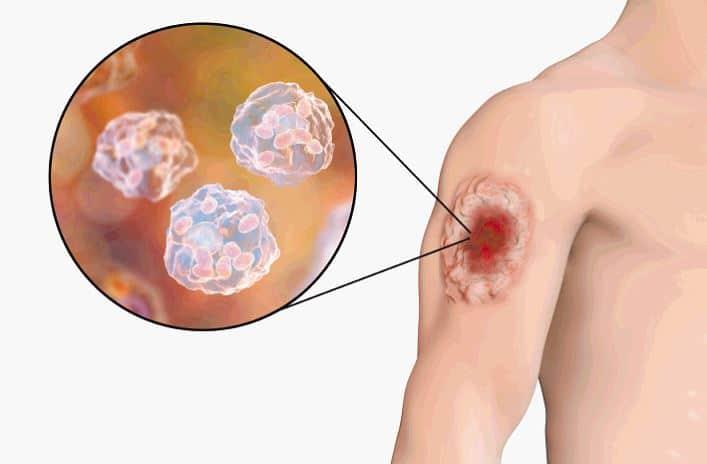 Qué causa la lepra