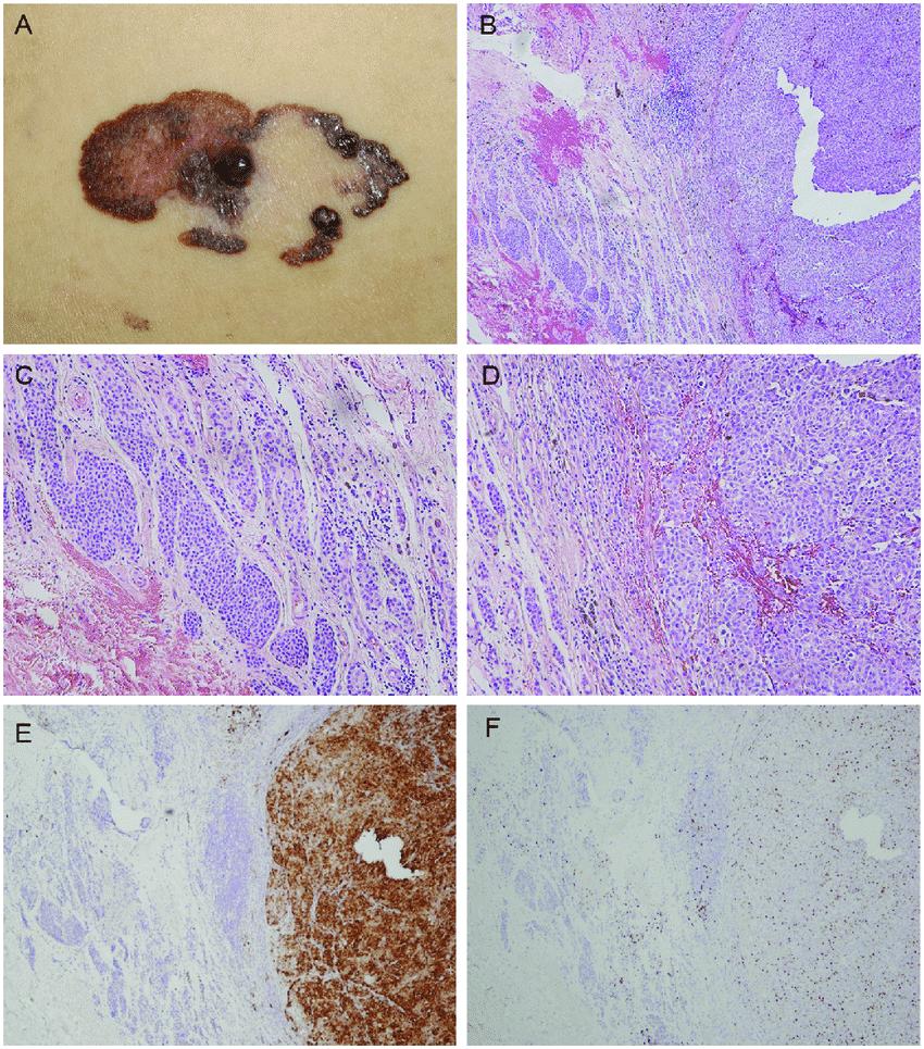 melanoma-nodular-2