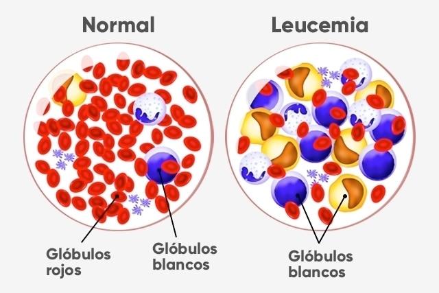 sintomas-de-la-leucemia