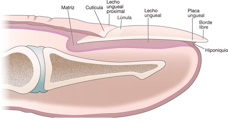Melanoma en las uñas