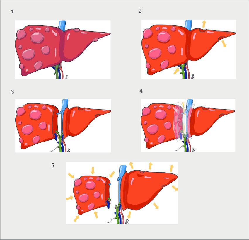 Melanoma metastásico