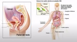 Obstrucción de las vías urinarias y también intestinales