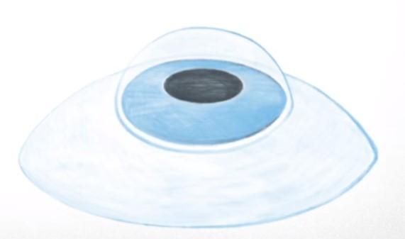 cirugia en el ojo