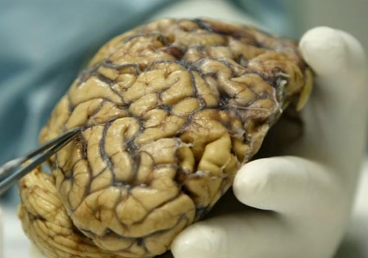 lados del cerebro