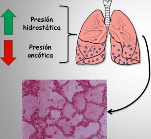 edema pulmonar por altitud