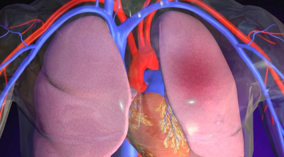 el edema pulmonar