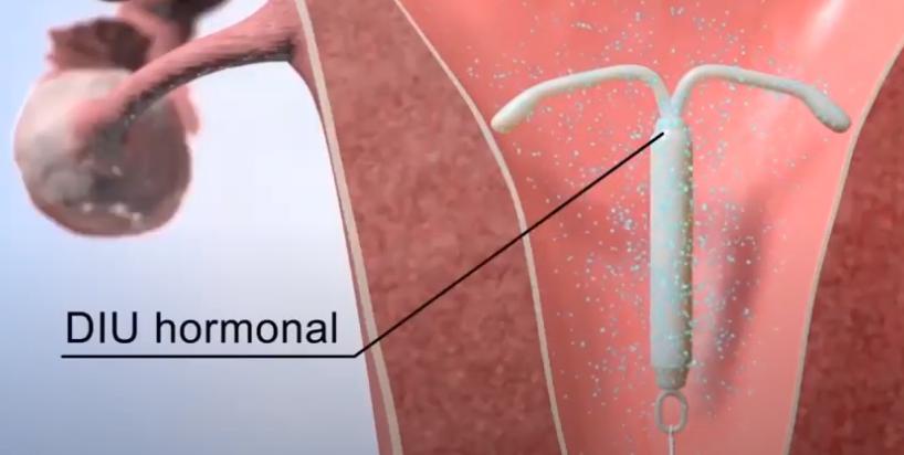 DIU hormonal