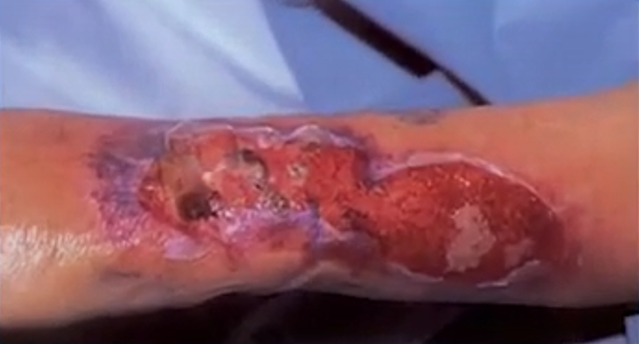brazo con Erisipela