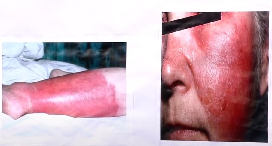 casos de Erisipela