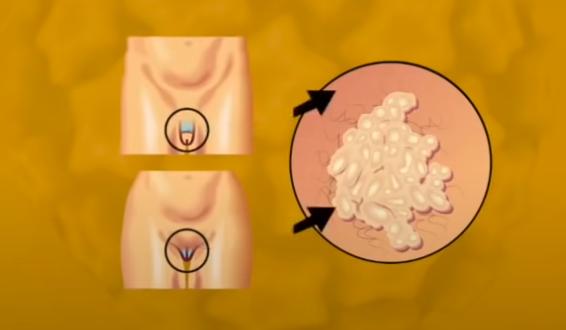 síntomas de VPH