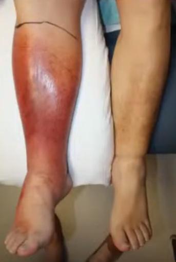 una comparativa de pierna con Erisipela