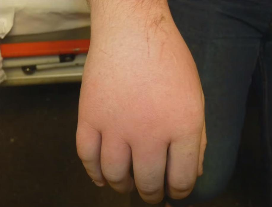 Urticaria en el dorso de la mano