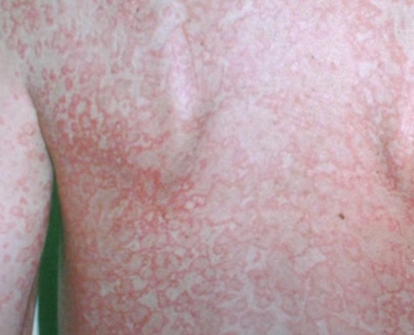 diagnostico de Sarpullido por calor
