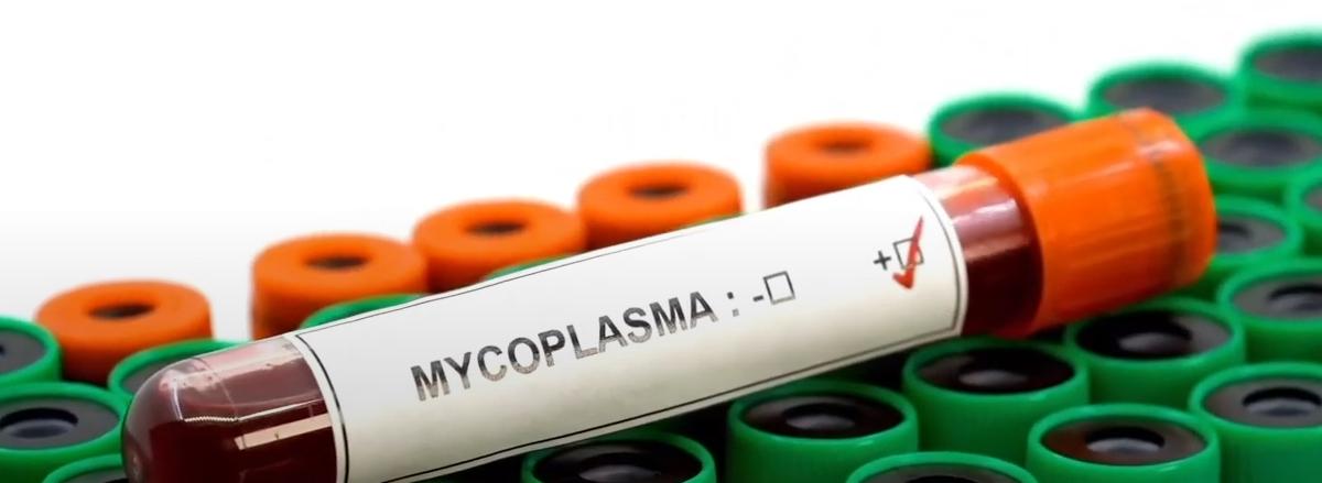 prueba de Mycoplasma Genitalium positiva